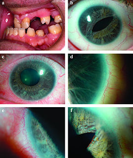 autosomal dominant disease characterized by abnormalities of the front part of the eye, the anterior segment
