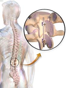 Spinal Fusion Wikipedia