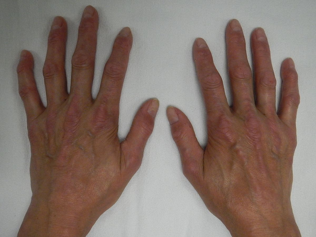 CREST syndrome - Wikipedia