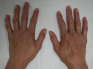 CREST syndrome syndrome characterized by calcinosis, Raynauds phenomeno, esophageal dysmotility, sclerodactyly and telangiectasia