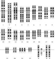 Karyotype for trisomy Down syndrome. Notice the three copies of chromosome 21