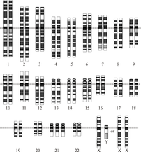 Karyotype for trisomy Down syndrome.