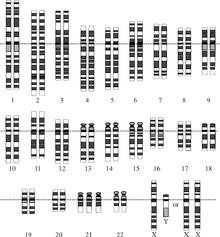 220px-Down_Syndrome_Karyotype.png