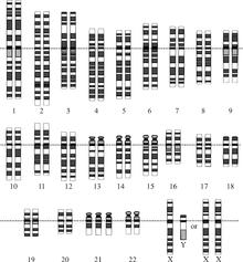 Karyogram (chromosomenkaart) van iemand met trisomie-21: er is een ...