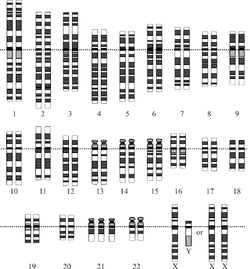 Chromosomes in متلازمة داون, the most common human condition due to aneuploidy. Notice the three copies of chromosome 21 in the last row.
