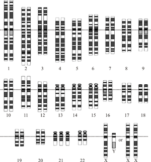 Of sex chromosomes in trisomy 18