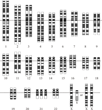Nondisjunction - Image: Down Syndrome Karyotype