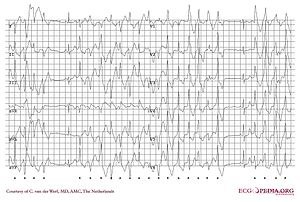 Catecholaminergic Polymorphic Ventricular Tachycardia Wikipedia