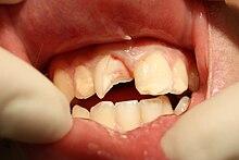 Odontología - Wikipedia, la enciclopedia libre