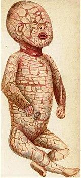 道化師様魚鱗癬の胎児ジョン・ブランド=サットンの著書『A Case of General Seborrhœa or \u201cHarlequin\u201d  Fœtus』(1886年)に掲載されたリトグラフ。