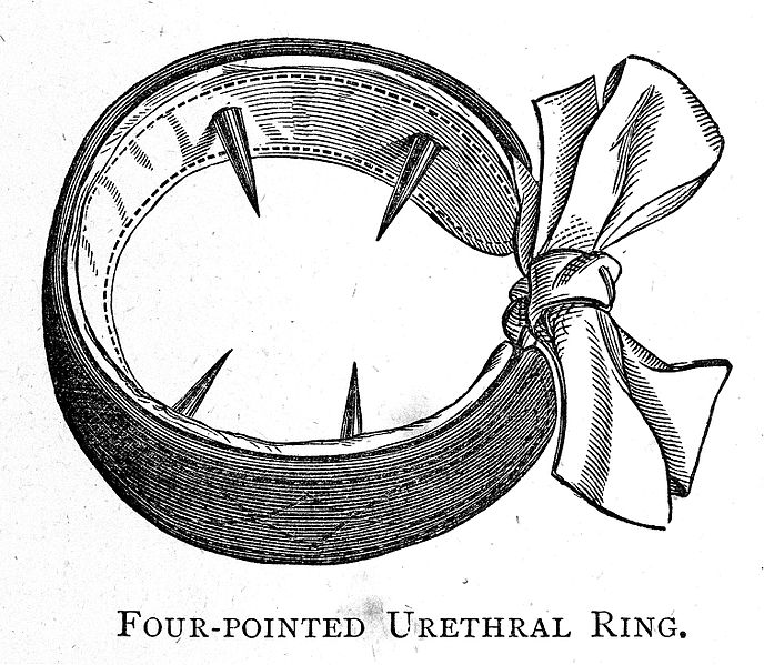 "File:J.L. Milton ""Pathology... Spermatorrhoea""; urethral ring Wellcome L0020376.jpg"