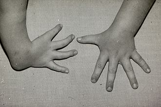 Radial dysplasia - Radial club hand with thumb missing