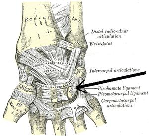Pisohamate ligament - Ligaments of wrist. Anterior view. (Pisohamate ligament labeled at center right.)
