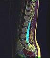 Lumbosacral MRI case 14 06.jpg