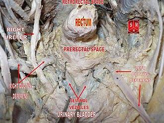 Pelvic cavity - Image: Male pelvic cavity