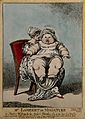 Master Wybrants, an infant weighing 39 pounds, on his mother Wellcome V0007161.jpg