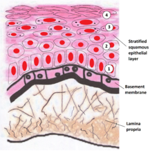 oral mucosa wikipedia Labial Mucosa Cancer schematic illustration of the layers found in keratinized oral mucosa that include a deeper lamina propria and basement membrane in between and superficial