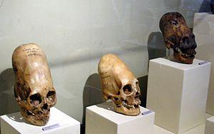 Artificial cranial deformation - Paracas skulls