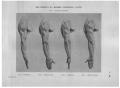 Richer - Anatomie artistique, 2 p. 136.png