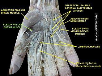 Flexor pollicis brevis muscle - Image: Slide 2AAAA