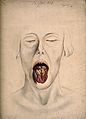 Syphilis; lesions on woman's tongue, 1866 Wellcome V0010158.jpg