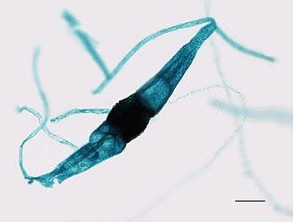 "Zygomycota - An immature zygosporangium of the Rhizopus fungus forming from two fused gametangia, showing a ""yoke"" shape."