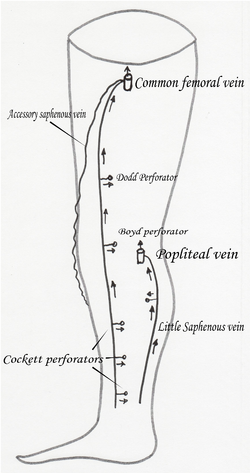 Accessory saphenous vein2.png