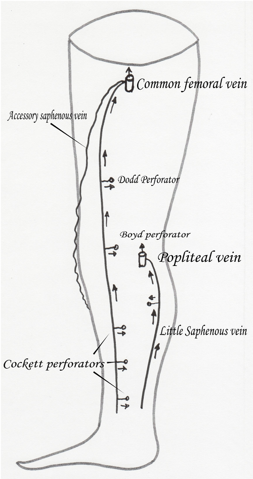 Anterior Accessory Saphenous Vein Wikiwand