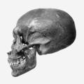 Akhenaten skull profile.png