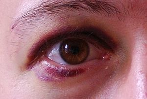English: Black eye (periorbital hematoma) afte...