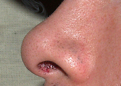 Blackheads by David Shankbone.jpg