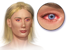 allergic conjunctivitis - wikipedia, Skeleton