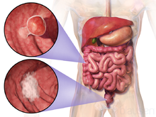 colorectal cancer - wikipedia, Human Body