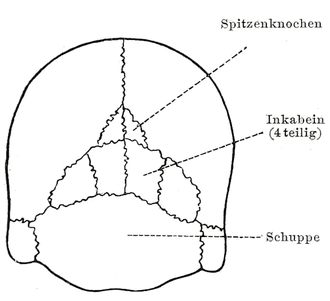 Interparietal bone - Multiple interparietal bones or inca bones shown in a 20th-century anatomical illustration (with labels in German).
