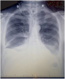 Chylothorax type of pleural effusion
