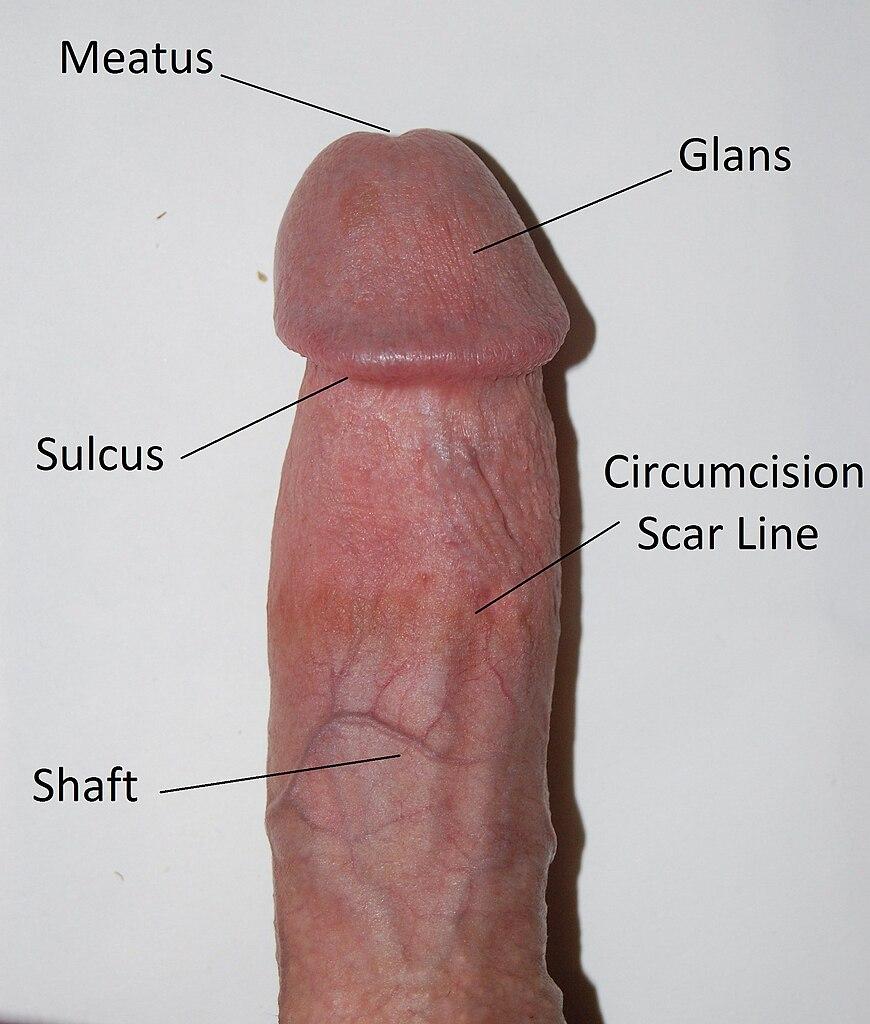 What Does A Circumsised Penis Look Like 109