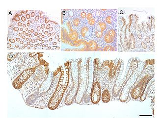 Large intestine - Image: Colonic crypts within four tissue sections
