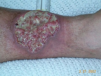 Pyoderma gangrenosum, A medical condition whic...