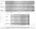 Foetel phonocardiograph from case showing Wellcome L0030716.jpg
