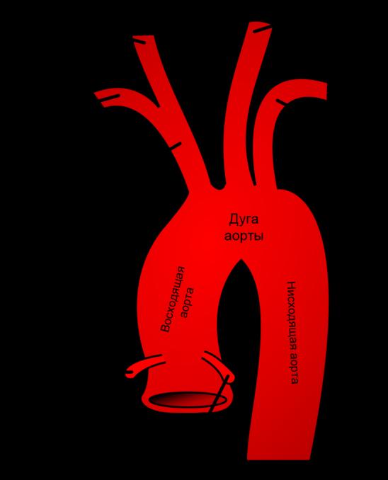 строение аорты картинка википедии есть