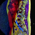 LSV MRI spondylolisthesis T1W T2W STIR 13.jpg