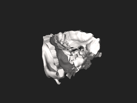 3D model of Orbit with surrounding bones Orbit of the Face, STL file processed 1.0.0.stl