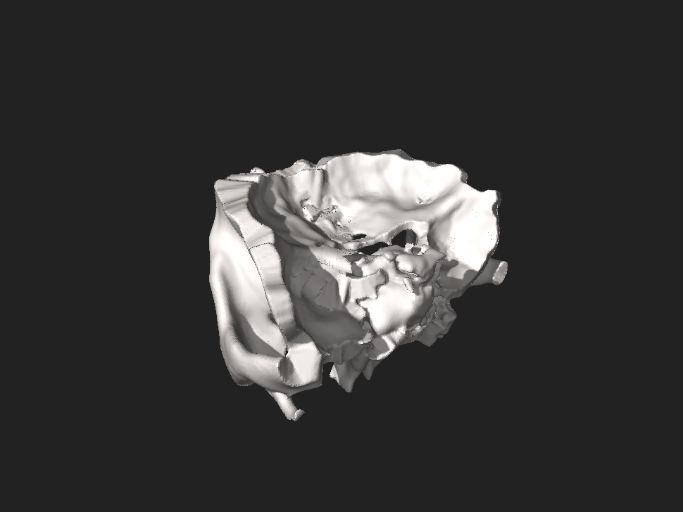 Orbit of the Face, STL file processed 1.0.0.stl