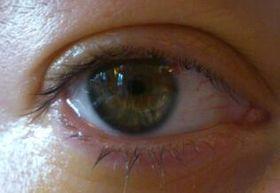 739e11e7a صورة العين بعد 24 ساعة من جراحة زراعة العدسة. العدسة مرئية أمام القزحية،  ولا يزال البؤبؤ صغيرًا بسبب قطرة العين قبل الجراحة.