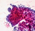 Papillary Carcinoma of the Thyroid, FNA, Pap Stain (6796247615).jpg