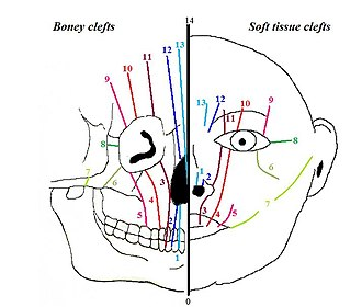 Facial cleft - Tessier classification. Left: boney clefts, Right: Soft tissue clefts.