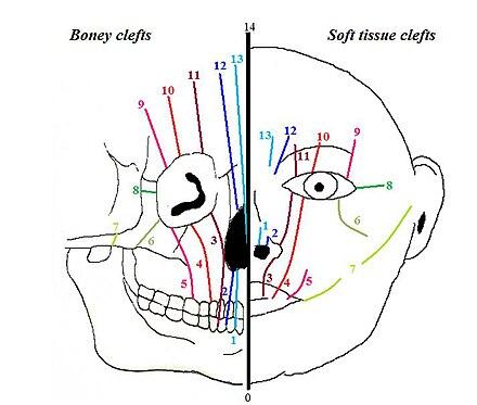 Frontonasal Dysplasia