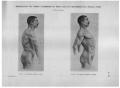 Richer - Anatomie artistique, 2 p. 110.png