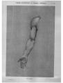 Richer - Anatomie artistique, 2 p. 91.png