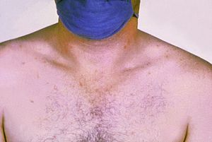 Rose spots on the chest of a patient with typh...